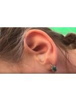 Что делать, если заболело ухо - полевой способ лечения